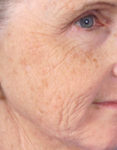 Laser Skin Resurfacing Before and After Pictures Jupiter and Port St Lucie, FL