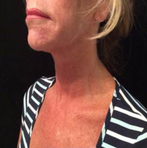 Ultherapy Before and After Pictures Jupiter and Port St Lucie, FL